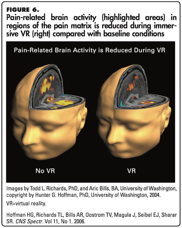 Pain related brain activity reduced during immersive VR treatment